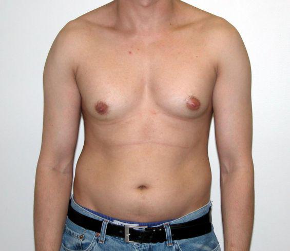 Gynecomastia Malaysia